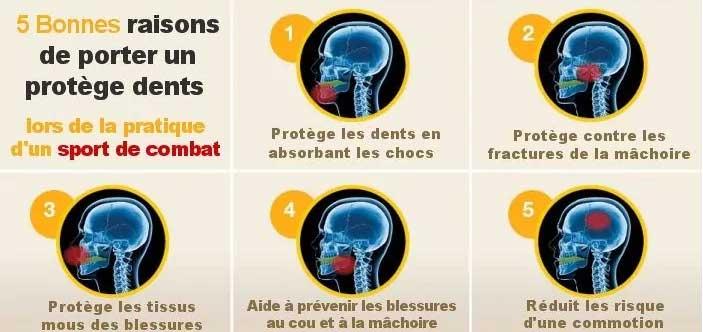 Pourquoi mettre un protège-dents au rugby ?